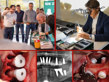Bone Augmentation Bundle: Week & Congress